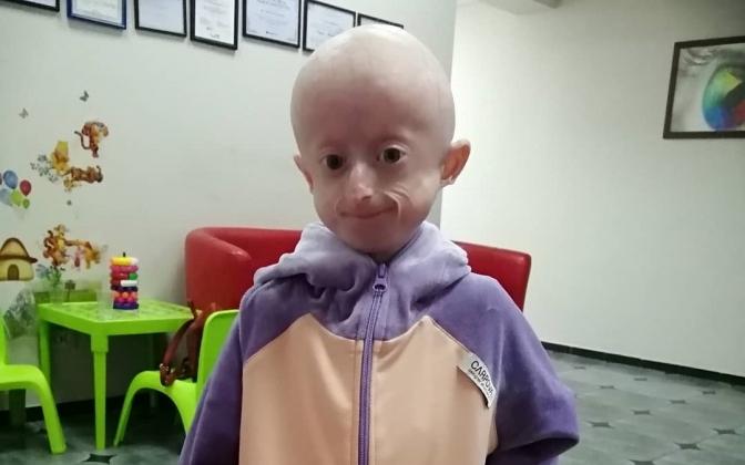 Від рідкісної хвороби померла 10-річна Іринка Химич